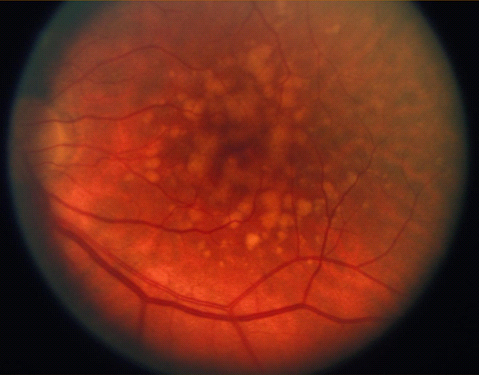 Age Related Macular Degeneration (ARMD) Dry Form