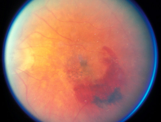 Age Related Macular Degeneration (ARMD) Wet Form
