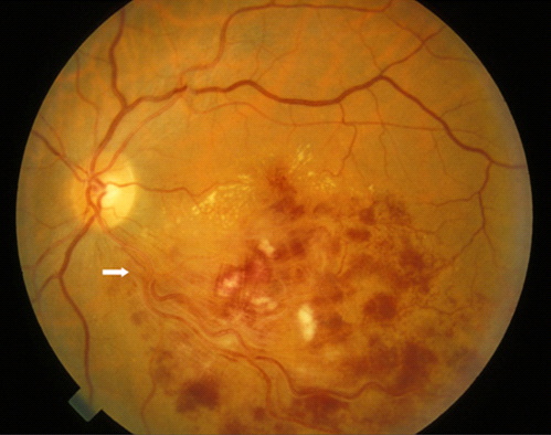 Branch Retinal Vein Obstruction (BRVO)