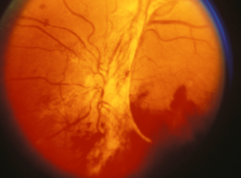 Proliferative Diabetic Retinopathy (PDR)