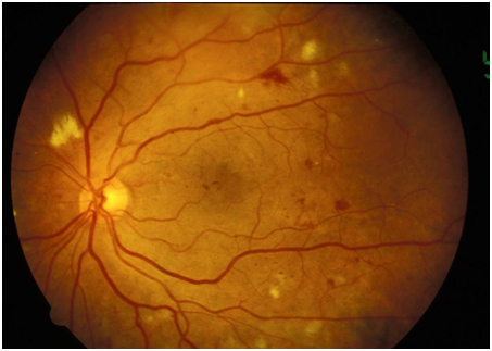 Diabetic Retinopathy (Non-Proliferative with More Severe Findings - NPDR)